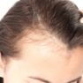 Why Do Women Suffer Excessive Hair Loss Throughout Their Lifespan?